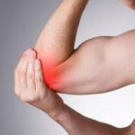 Articolazione del gomito e anatomia del gomito: radio ulna e omero (avambraccio)