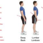 Tipi di postura corretta e scorretta: esercizi e atteggiamenti posturali